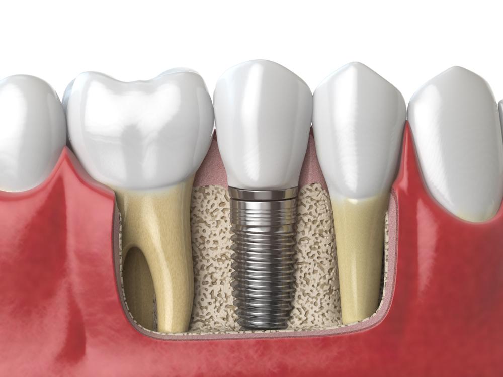 Основные предусловия качественной имплантации зубов