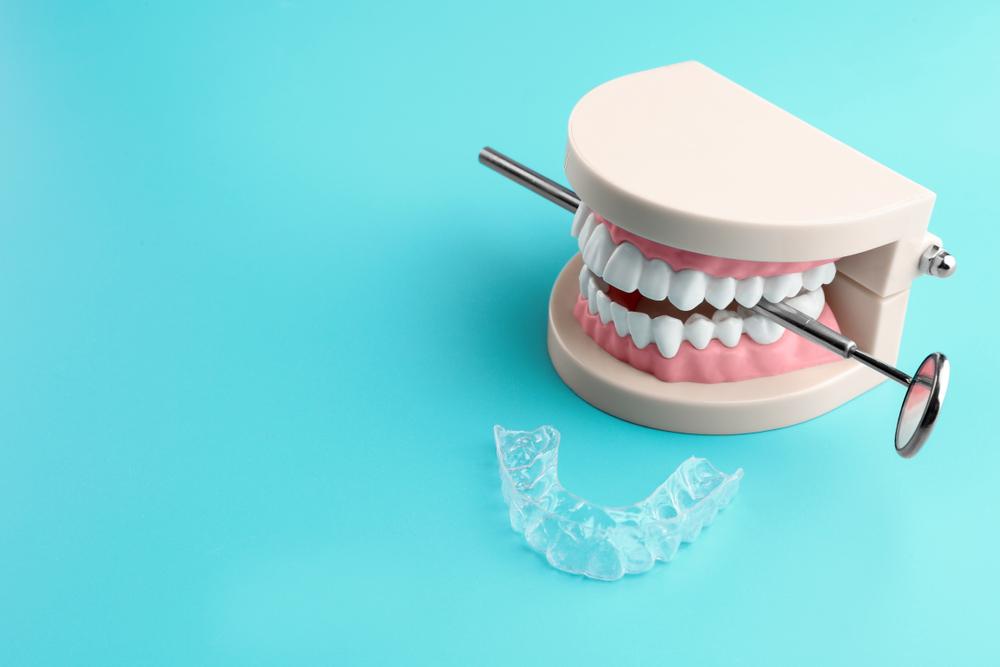4 способа лечения бруксизма в стоматологии