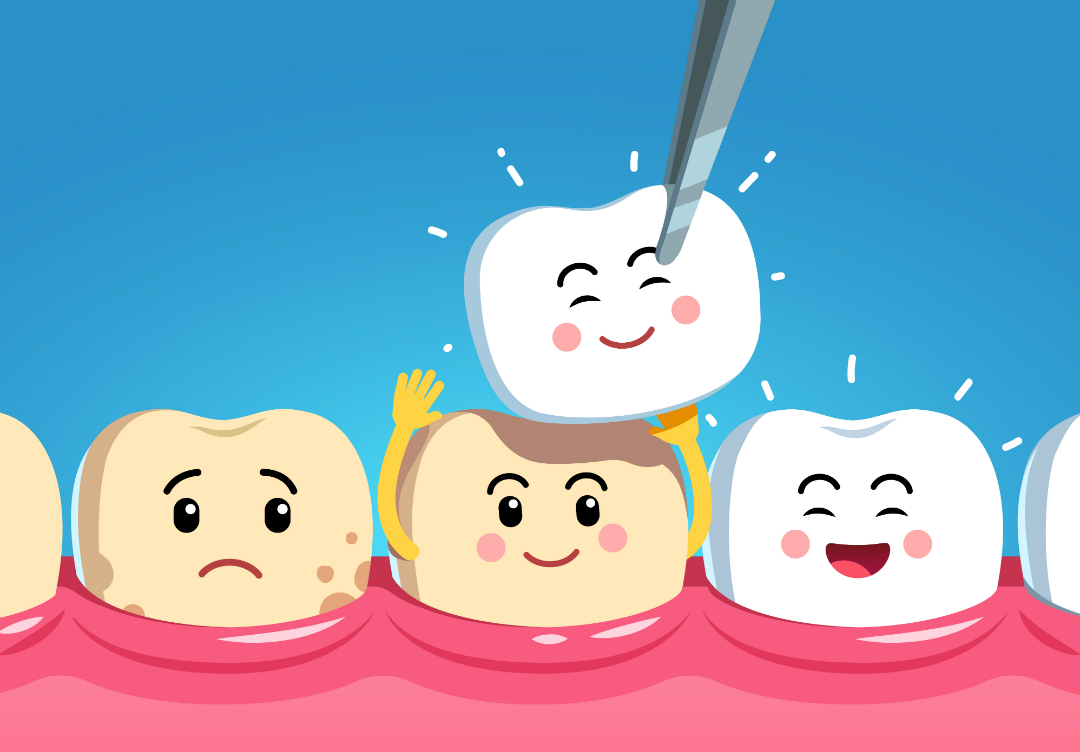 Естественная реставрация зубов: как быть с объемными накладками?