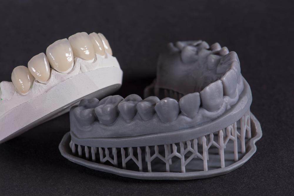 Оттиски зубов: почему это так важно?